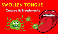 Swollen Tongue Causes & Treatments